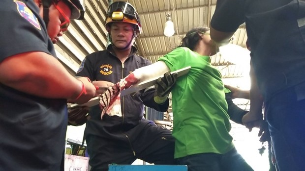 Das Rttungsteam konnte den Arm der Burmesin nicht mehr retten.
